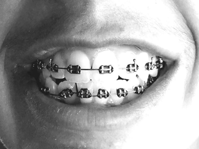 good for braces
